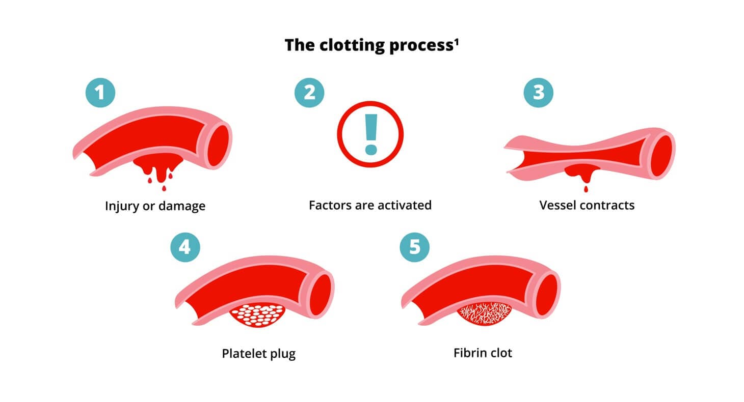 Chart showing the clotting process of blood