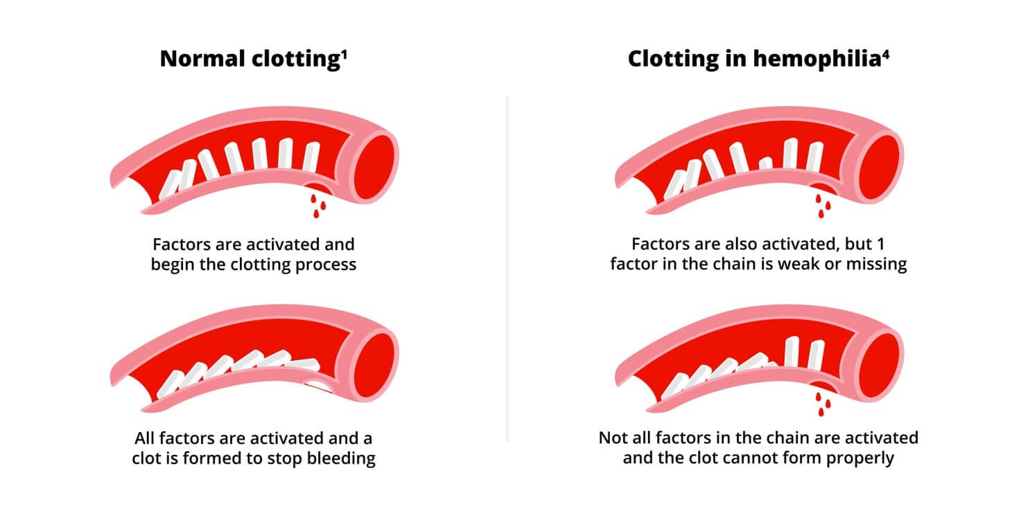 Normal clotting vs clotting in hemophilia