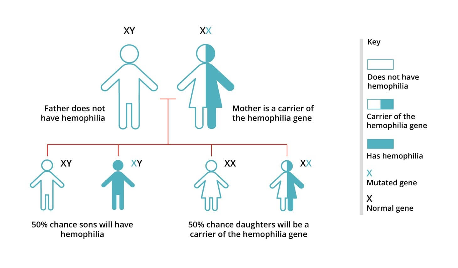 Hemophilia is the result of an inherited genetic mutation.